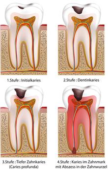 Zahnwurzel Entzündung